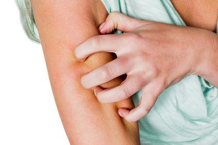 BEPANTHOL CALM CREMA una crema sin corticoides que alivia el picor y el enrojecimiento producidos por  Dermatitis atópica Eccema Reacciones alérgicas Piel seca restablece la barrera cutánea y de esta manera alivia síntomas como el picor en la piel y el enrojecimiento. Por ello, en afecciones como la piel seca, la dermatitis atópica, eccema, las reacciones alérgicas y otros tipos de irritaciones cutáneas, la restauración de la barrera protectora cutánea mediante el uso de cremas específicas…