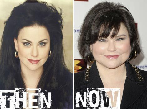Delta Burke Plastic Surgery Before & After Pictures