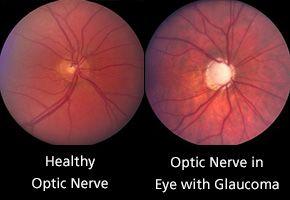 Glaucoma affecting the Optic Nerve. #EyeMechanix #FineTuneYourVision