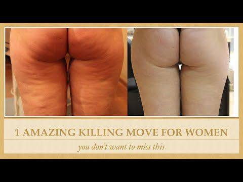 Cellulite Removal (Reduction) 2015 - 1 Killing Exercise To ...