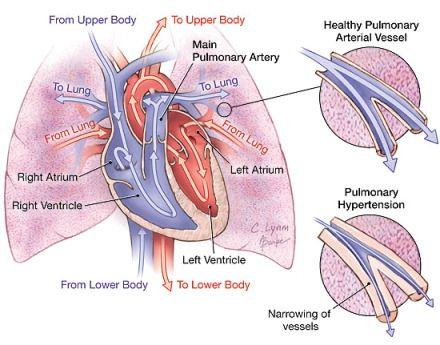 Circulation & pulmonary hypertension patient diagram | Imaging ...