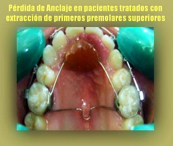 PDF: Pérdida de Anclaje en pacientes tratados con extracción de primeros premolares superiores | Ovi Dental
