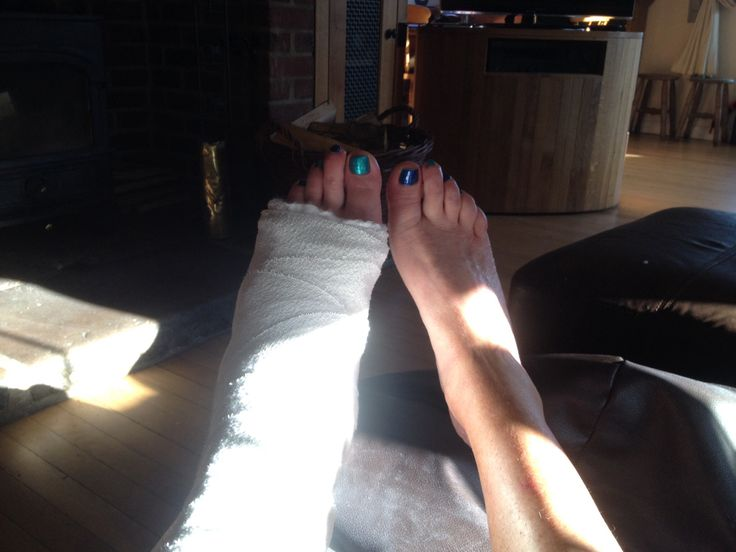 10 best images about broken ankle on different