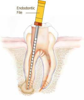 following anesthesia, the inside of the tooth is revealed #OremDentist