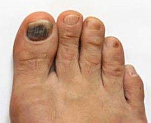 Black Toenail Fungus Causes Home Remedies & Treatments  www.yellowtoenail #ToenailFungusLavender