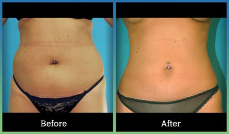Check out the results from Tumescent Technique for liposuction! Before and after pictures from St. Louis' Laser Lipo and Vein Center. Procedure done by Dr. Wright.