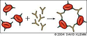 Hemolytic Anemia - DAT