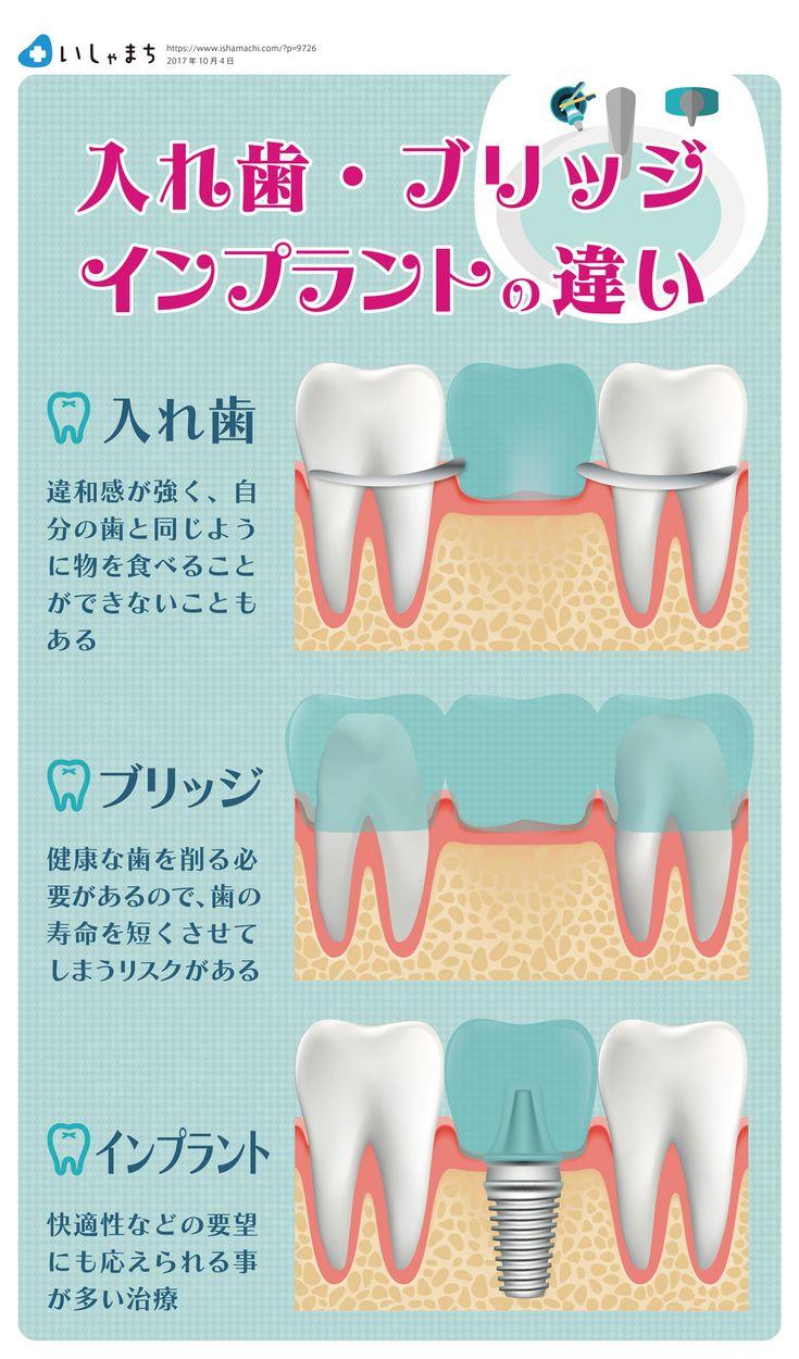 入れ歯、ブリッジ、インプラントの違い  #infographics