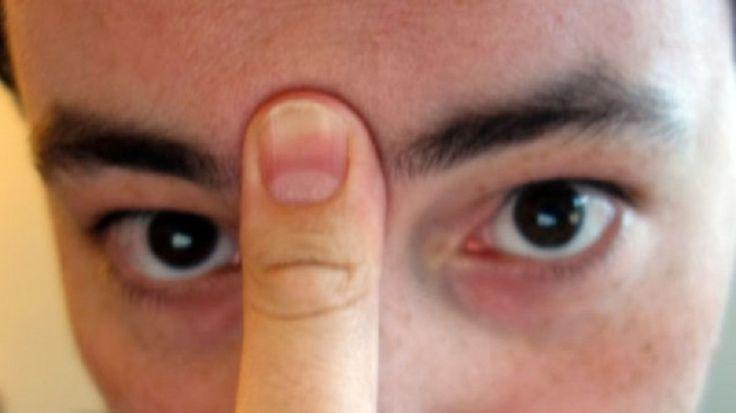 orrdugulás :a nyelvünkkel támasszuk meg a szájpadlásunkat,  a hüvelykujjunkat helyezzük a szemöldökünk közzé és enyhén nyomjuk, kb. 20 másodpercig . Ezután  be fog indulni az orrfolyás