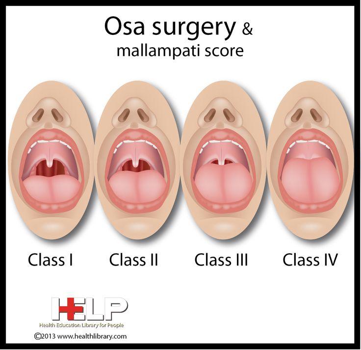 facial abnormalities sleep apnea