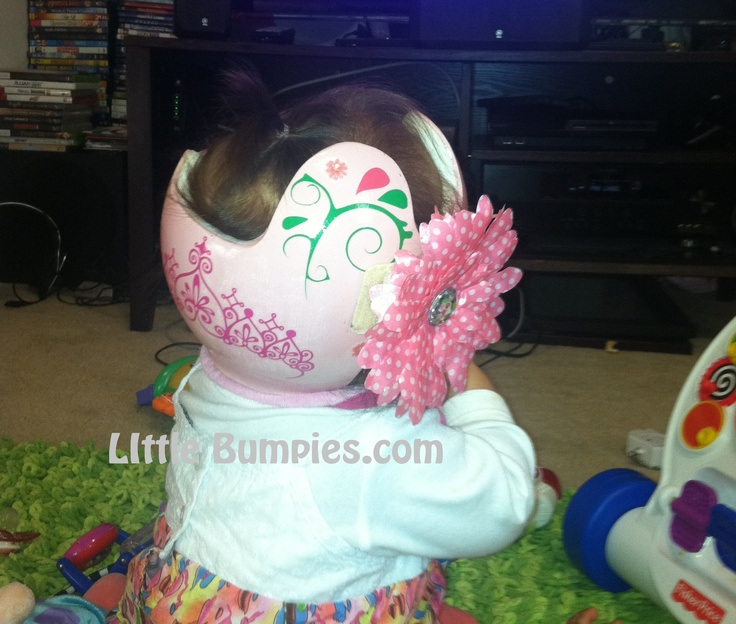 Littlebumpies com doc band starband cranial molding helmet baby helmet stickers