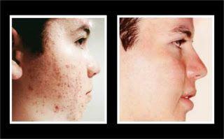Como Quitar El Acne Naturalmente: 6 Remedios Caseros Para Eliminar Las Cicatrices de...