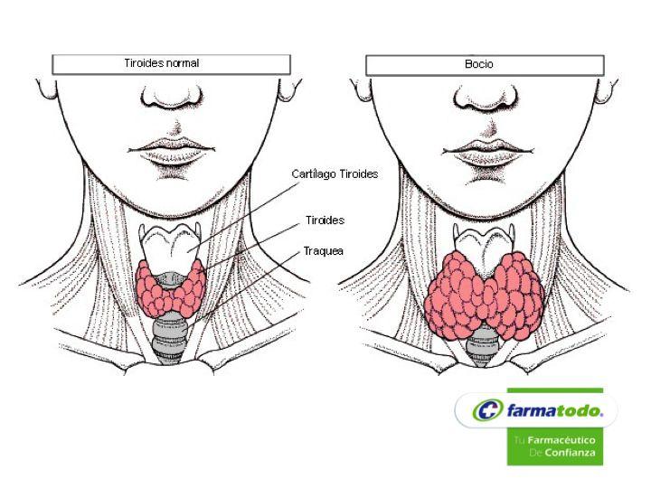 FARMACIAS ¿Cuáles son las causas del bocio? GRUPO FARMATODO Entre las más comunes se encuentran: falta de yodo, inflamación de la tiroides por infección o radiación, sustancias que favorezcan la aparición del bocio como tabaco, litio, aceites de girasol, etc., enfermedad de Graves-Basedow, alteraciones congénitas, hemocromatosis, tumores benignos o malignos, pubertad, embarazo, acromegalia, etc. www.farmatodo.com.mx