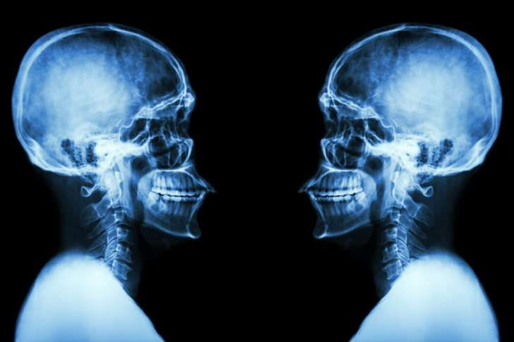 Udał się pierwszy na świecie przeszczep głowy. Teraz kontrowersyjny lekarz planuje...
