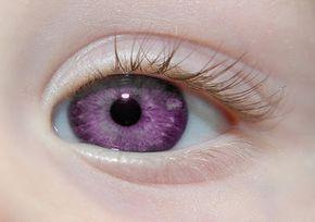"""Reh Canela: Alexandria's Genesis, conhecido também como """"olho violeta"""" (uma mutação genética). Quando alguém nasce com Alexandria's Genesis, seus olhos são azuis ou cinza no nascimento. Após seis meses, os olhos começam a mudar de sua cor original ao roxo, e esse processo dura seis meses. Durante a puberdade, a cor se aprofunda ao roxo escuro, uma cor arroxeada, um roxo real, ou um azul-violeta e permanece assim. Ela não afeta a visão da pessoa. Mulheres que nascem com essa mutação genetica…"""