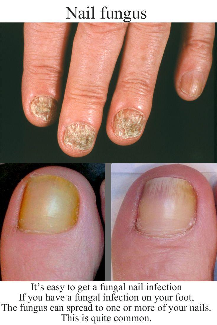 Pin Na Manicure