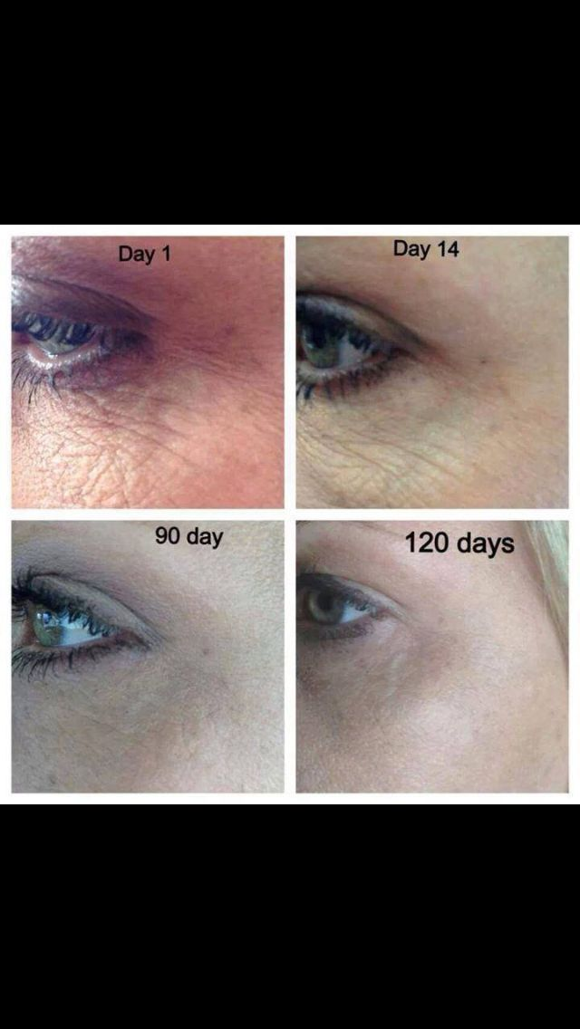 These results are Real with Nerium! Check out more before and after pictures, buy your own Nerium to get your own Real results, and check out the amazing opportunity!! Check it all out at http://www.linds2521.nerium.com
