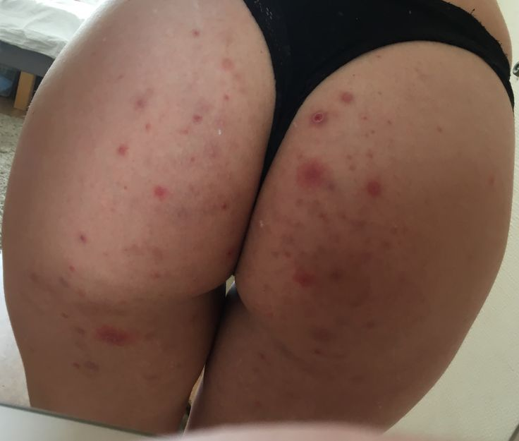 Acne on your butt