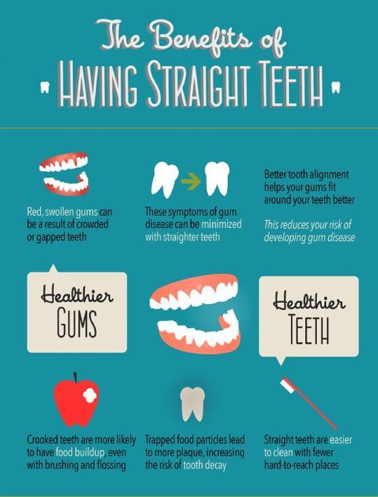 Benefits of having straight #teeth At Springvale Dental Clinic offers a wide range of cosmetic, implant and restorative dental procedures. Visit - www.springvaledental.com.au or call - (03) 9546-0011
