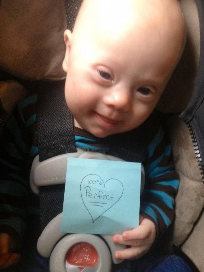 Mom Told She Should've Aborted Down-Syndrome Son, Here's Her Response