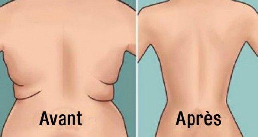 Voici comment se débarrasser de la graisse du dos facilement et rapidement…