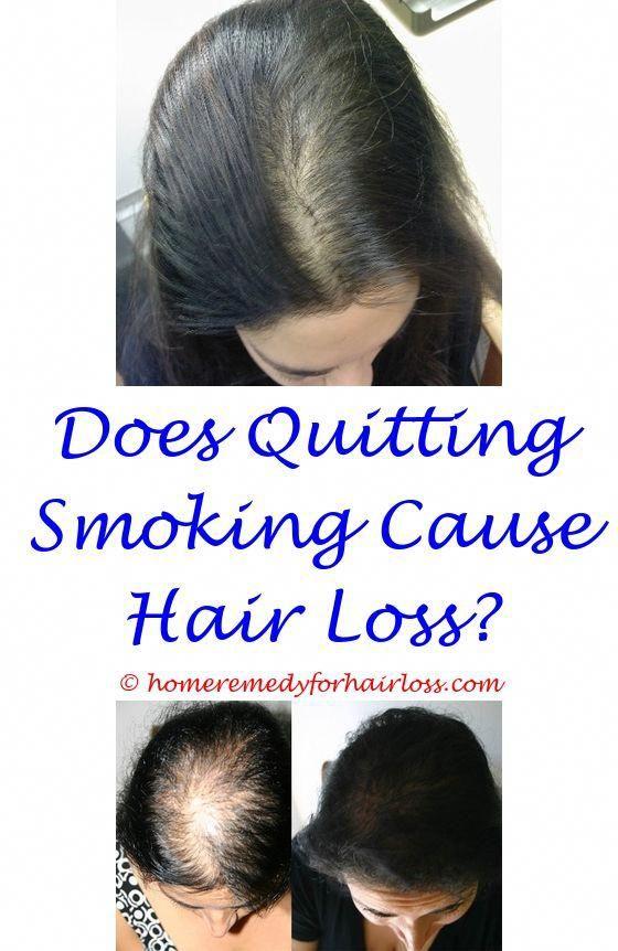 Is Finasteride 5mg Good For Hair Loss Can Cla Cause Hair Loss Shampoo Reverse Hair Loss Onion Juice Hair Loss Befor Hair Loss Shampoo Hair Loss Hair Loss Men
