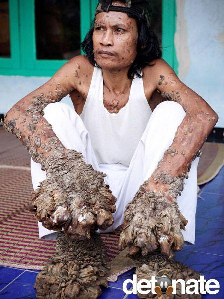 Que faire si trempe atopitchesky la dermatite