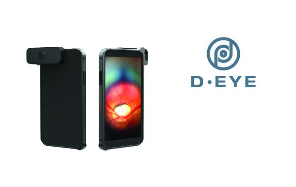 D-Eye: mobile app e cloud per lo screening della retina. Intervista ad Andrea Russo