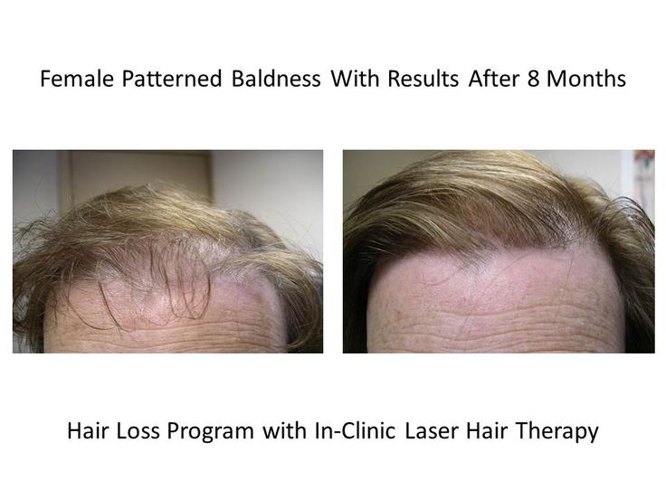 Here is Female Patterned Baldness With great Results After 8 Months using the Multi-Therapeutic Hair Loss Program with In Clinic Laser Hair Therapy