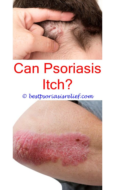 #psoriasispictures photochemotherapy for psoriasis - psoriasis biologics cost.#psoriasistoenails home uvb light therapy for psoriasis psoriasis on torso can you have psoriasis without the rash 4671292079