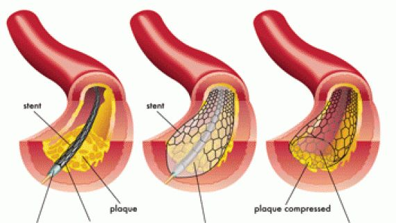 Dr.Sankha Subhra Das is a successful cardiologist who provides finest Cardiomyopathy Treatment in Kolkata for the people having heart disease.