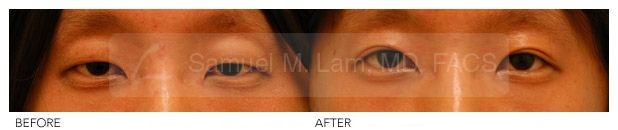 Asian Blepharoplasty Photo (Early Result) - Asian Double Eyelid (Blepharoplasty) Surgery Before And After Photo Recently After Surgery By Dr Samuel Lam. @Lamfacialplastics . Before And After Asian Blepharoplasty Surgery  #Blepharoplasty #Doubleeyelid #Asian #Plasticsurgery #Dallasplasticsurgeon #Drsamlam