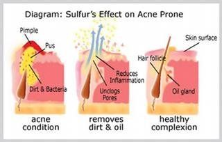 Sulfur Acne Treatment Tips And Guide: Many of you may not be aware that sulfur can solve skin problems. Moreover, you may be wondering just how does sulfur work for acne or how to use sulfur for acne? Visit the link for details: http://acnetreatmentshq.com/sulfur-acne-treatment-tips-gui…/