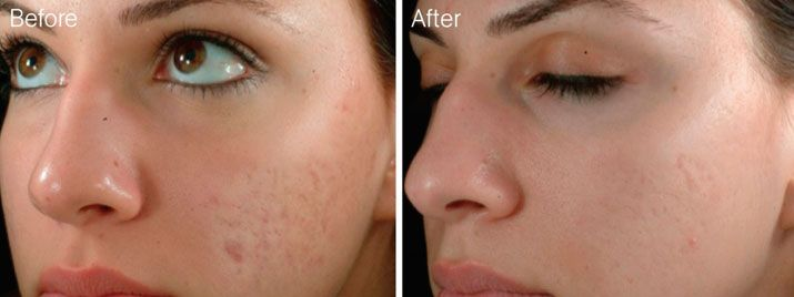 Microneedling Is An Effective Way To Reduce Acne Scars