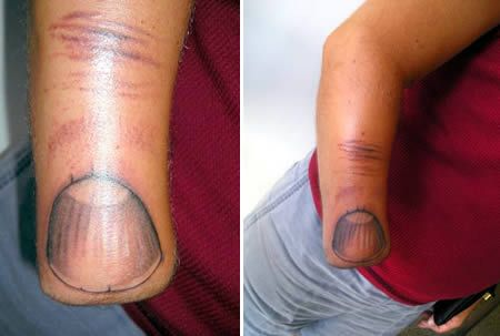 This guy turned his amputated hand into a finger with a giant tattoo of a fingernail!