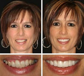 Are you embarrassed to smile because of a missing tooth (or teeth) and need a replacement tooth to repair your #smile? Bridges and Crowns #ATX #CosmeticDentistry #AustinTexas