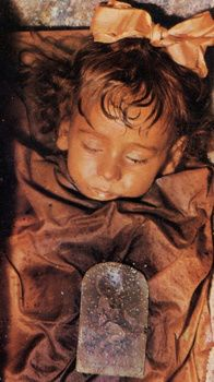 Rosalia Lombardo. Born in Sicily, 1918 and died December 6, 1920 of pneumonia. Her father loved her so much he had her preserved by a taxidermist/embalmer. Her corpse was later admitted to Capuchin catacombs. Her body was injected with a with a formula including zinc salts, which is what preserved her body so we..