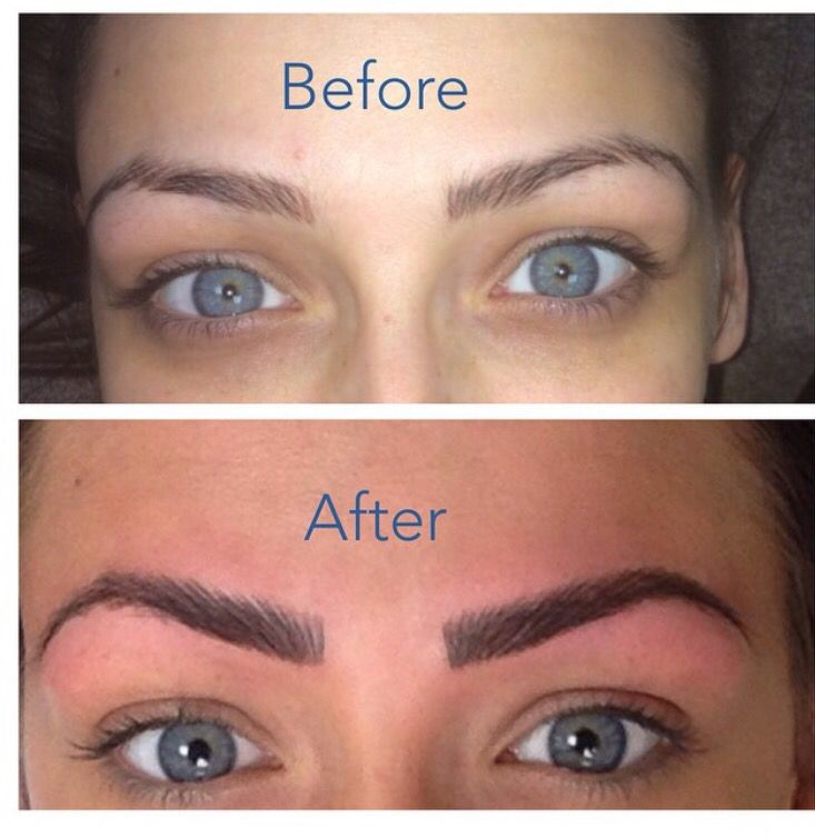 Before and after spm eyebrows