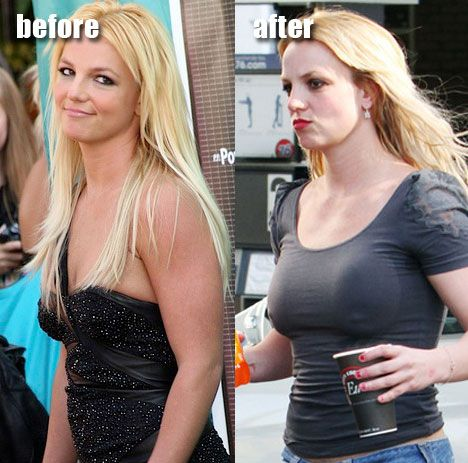 Young Breast Augmentation Before And After Did Britney Spears get...