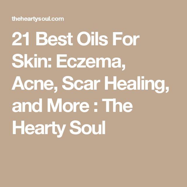 21 Best Oils For Skin: Eczema, Acne, Scar Healing, and More : The Hearty Soul #EczemaEssentialOils #EczemaMoisturizer