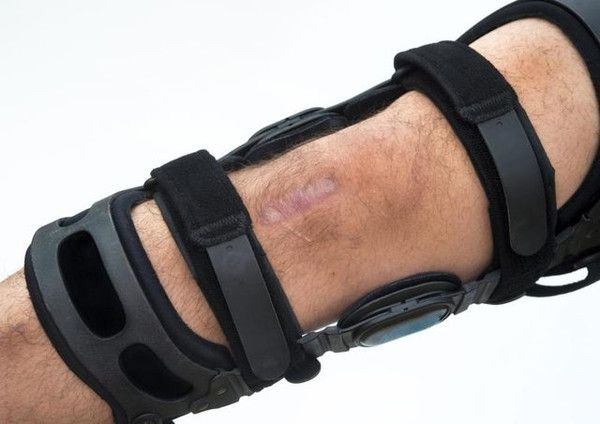 Complications After Partial Knee Replacement : A man's knee in a brace.