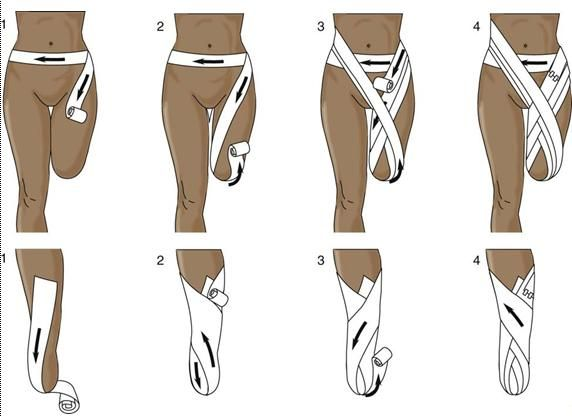 A common method of wrapping an amputation stump. Top, Wrapping for above-knee amputation. Bottom, Wrapping for below-knee amputation