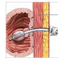 The  Whys and Why-Nots of Feeding Tube Placement: PEG tube