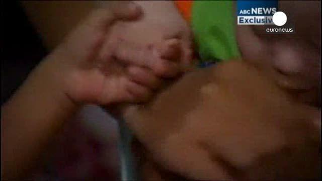 Polémico vientre de alquiler: abandonan a un bebé con síndrome de Down y se llevan a su melliza sana