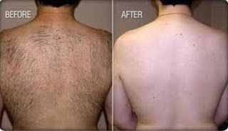 Secrets to Easy Permanent Hair Removal