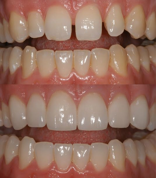 Porcelain Veneers on Front Teeth Closing the spacing between the teeth and improving the shade