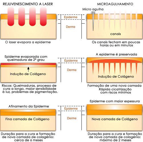 laser_x_tic