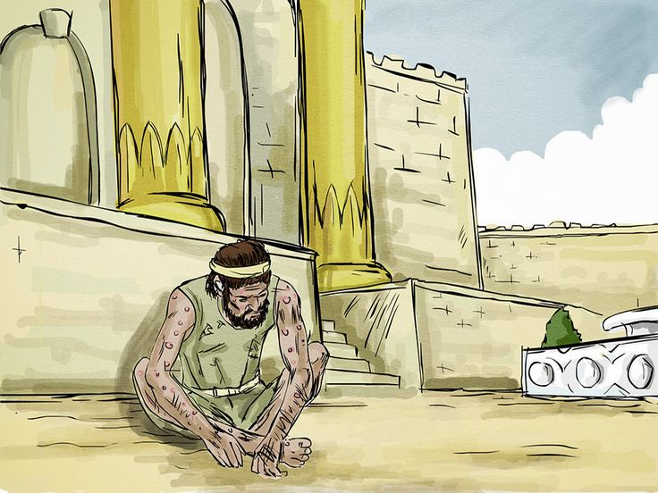 Jesus tells a parable about a rich man and Lazarus, a beggar, who both die. (Luke 16:19-31) – Slide 3
