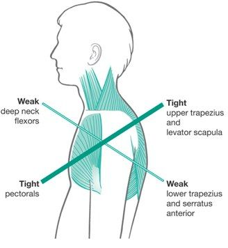 Good read about the Kinetic Chain on Mike Reinold's site.