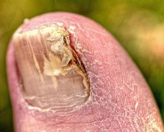 How to Cure Toenail Fungus Fast and Permanently